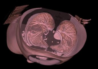 A CT scan of a lung